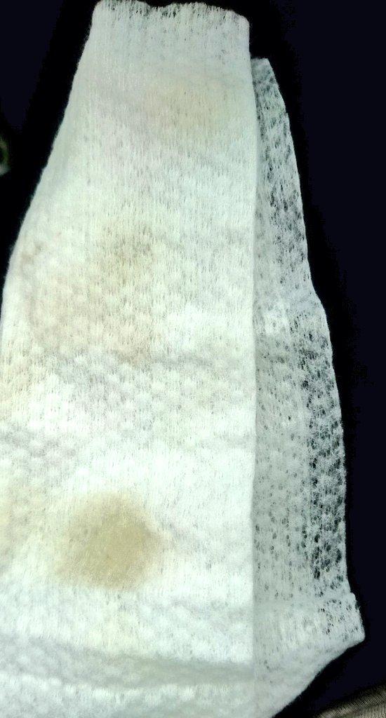 シートの汚れ1.png